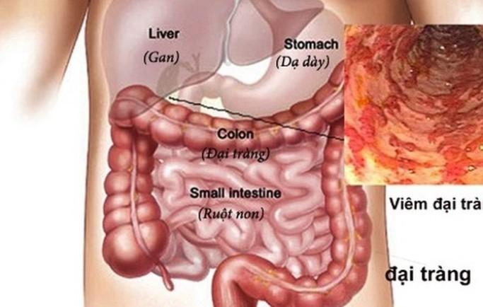 Bệnh viêm đại tràng là gì? 1 số bệnh lý thường gặp nhất ở đại tràng