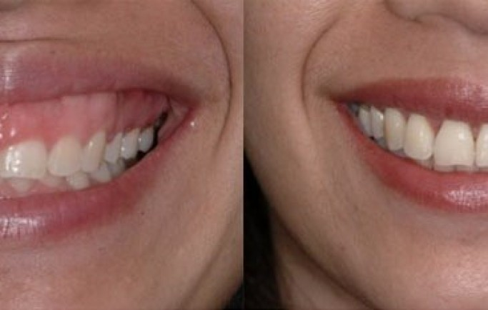 Bọc răng sứ giá hợp lý tại nha khoa quốc tế Á Châu là bao nhiêu?
