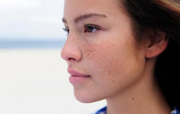Chú ý 4 điều cần tuân thủ khi chăm sóc da nám tại nhà