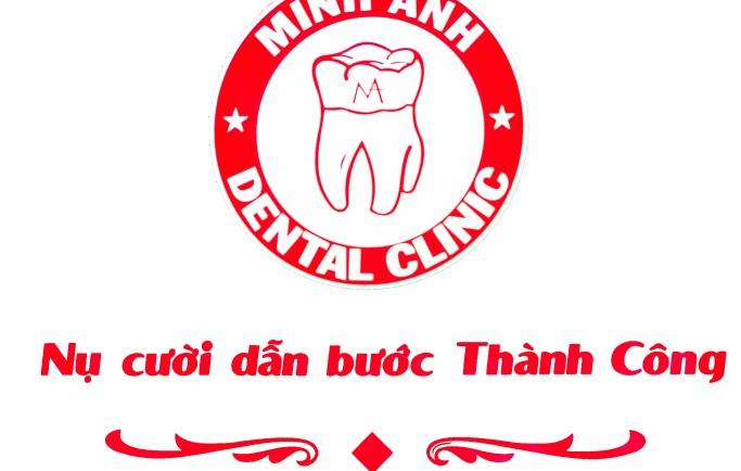 Nha khoa Minh Anh giảm giá 10-30% dịch vụ thẩm mỹ răng xuân 2019