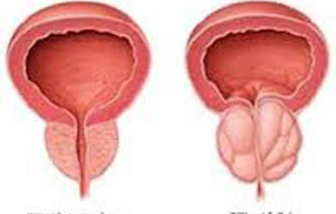 Phân biệt u xơ tuyến tiền liệt và ung thư tuyến tiền liệt khác nhau như thế nào?
