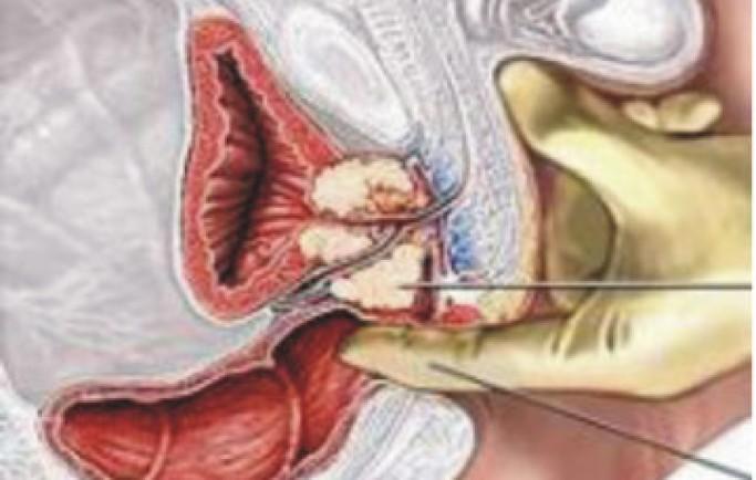 Cách kích thích tuyến tiền liệt nam giới sướng mà an toàn